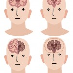 新潟大学 世界初、若年性認知症「HDLS」の診断基準を提唱