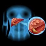 京都大学 肝硬変の予防へ 肝臓の炎症を制御する細胞