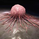 世界初 がん細胞増殖と薬剤耐性に関わるタンパク質の構造解明 慶應義塾大学
