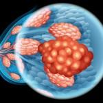 乳がんの浸潤転移・薬剤耐性分子機構と有効薬を発見 北海道大学ほか