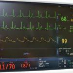 心臓に貼付ける生体電位センサーを開発 心筋梗塞部位の特定に成功 東京大学ほか
