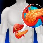 膵がんと肺がんを悪化させる因子を発見 診断薬開発に期待 大阪大学