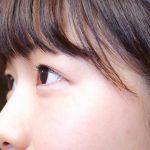 東北大学、緑内障の重症度と全身の酸化ストレスとの相関を解明